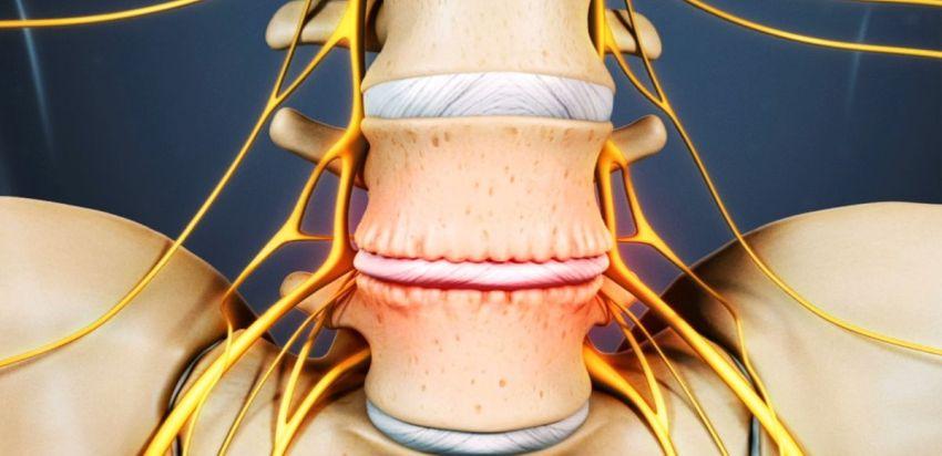 Остеохондроз и массаж в его лечении